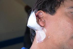 Corintho perdeu parte da orelha na confusão natalina (Foto Uol).